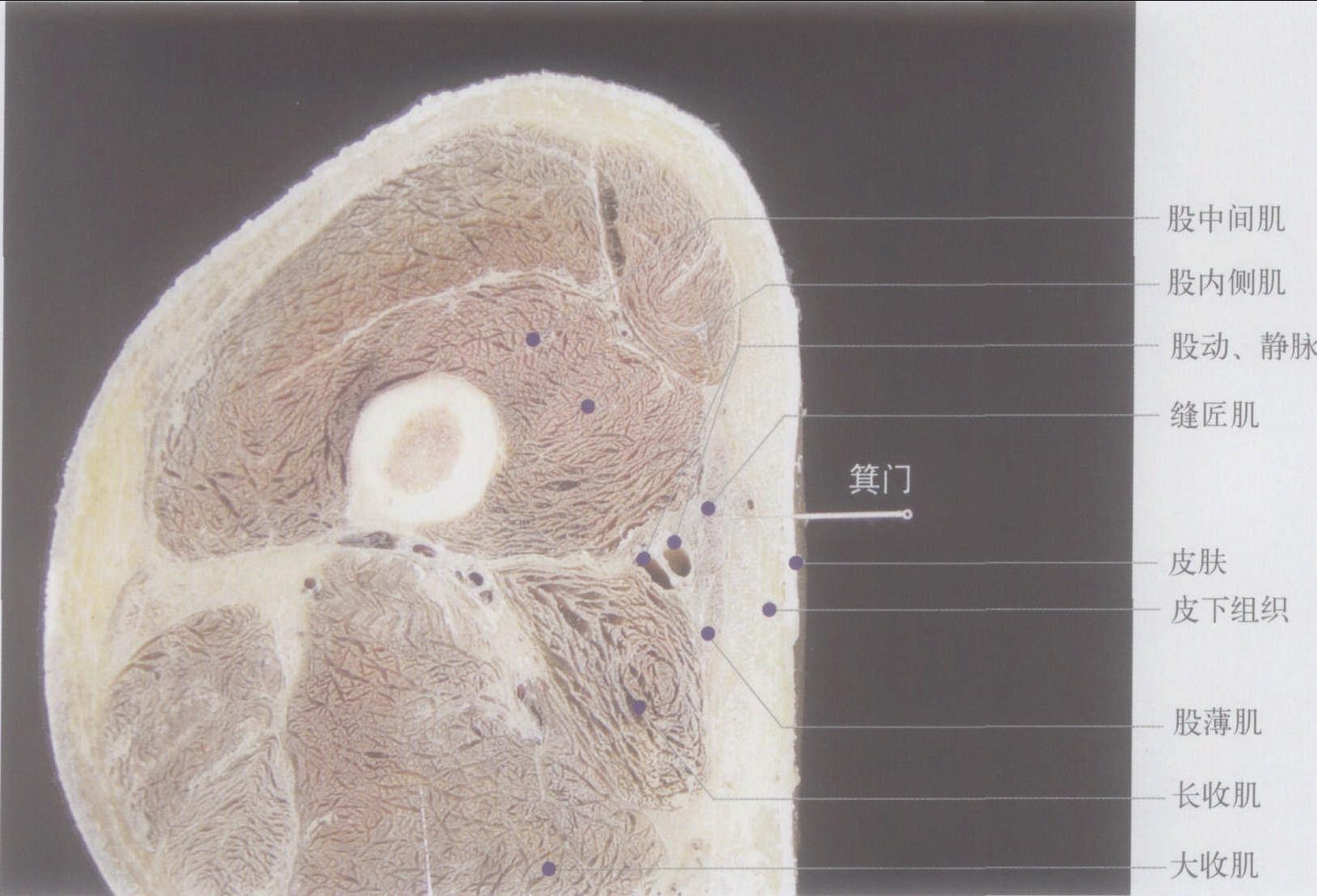 正文               (图) 左箕门穴横切面 :  【定位】 在大腿内侧,当