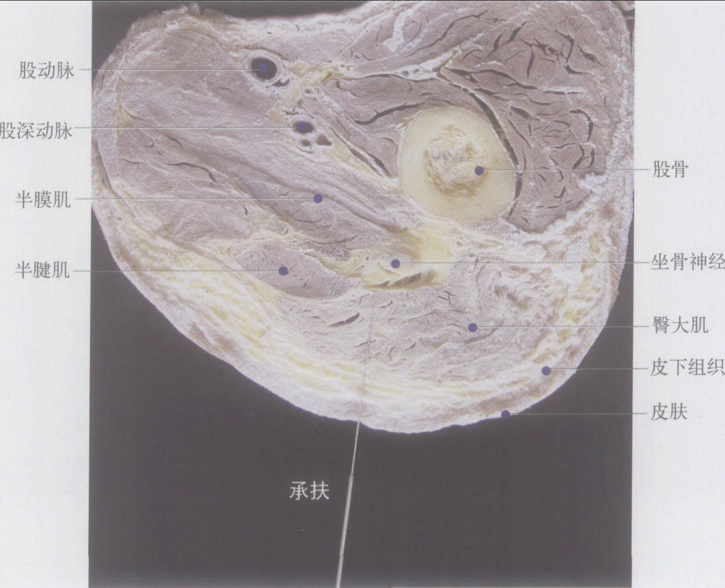 (图) 右承扶穴横切面 :  【定位】 在大腿后面,臀下