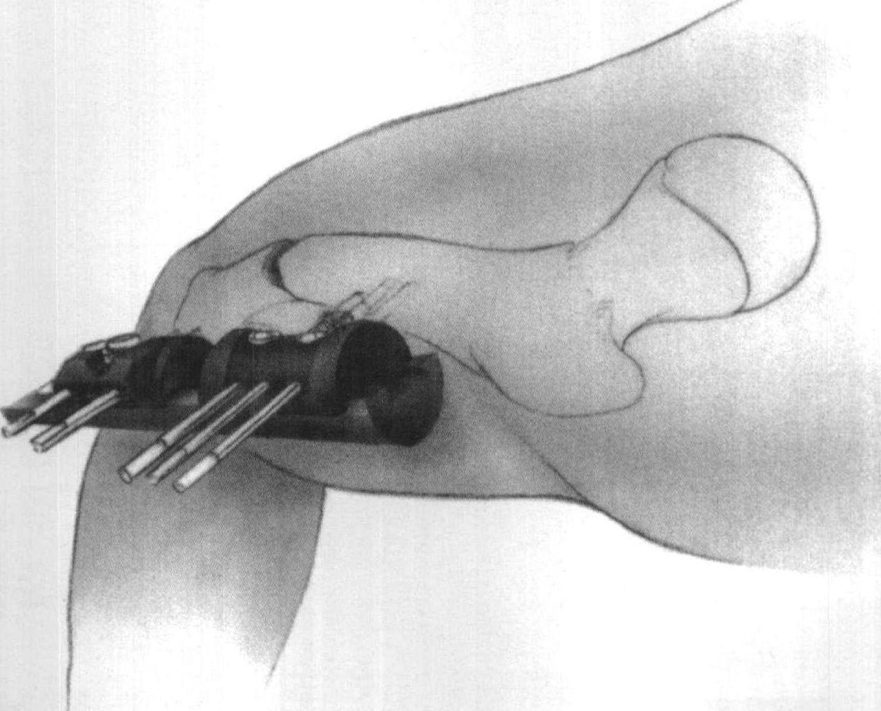 ofix万能外固定架矫正股骨短缩 旋转和成角畸形