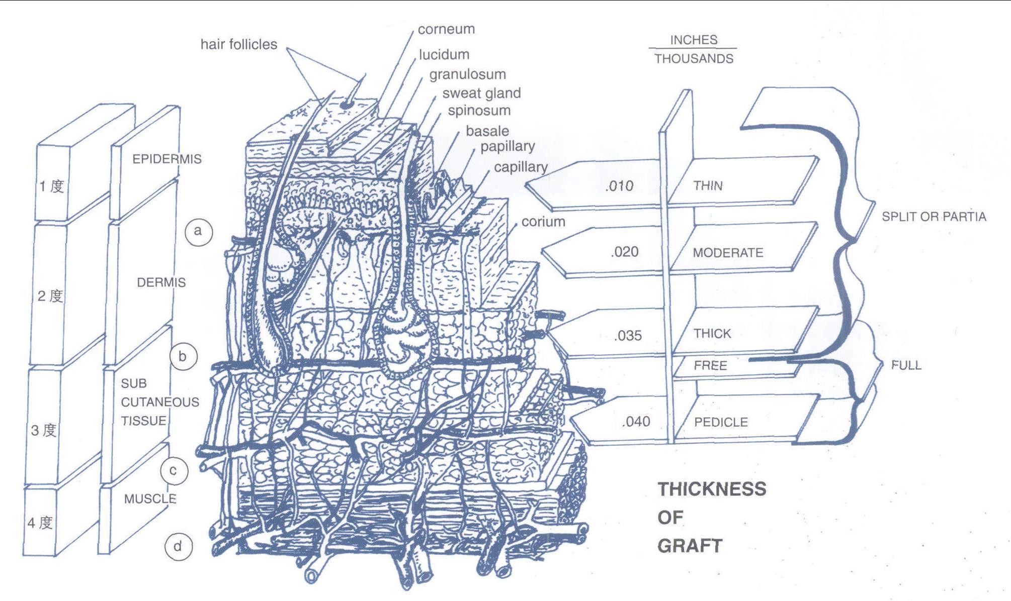 (图) 皮肤结构, 烧伤分度, 皮片厚度-深度创面修复