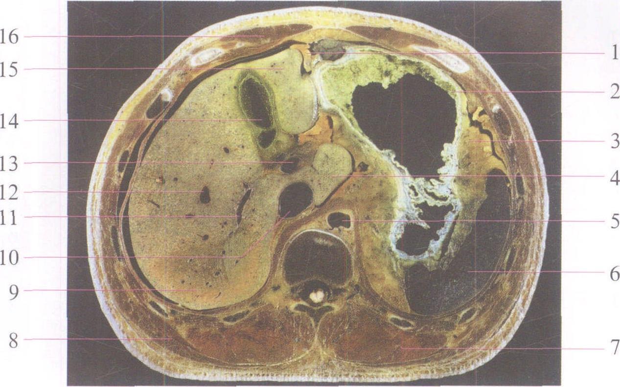 医学 腹部外科临床解剖学 正文  1肝圆韧带ligamentum teres hepatis