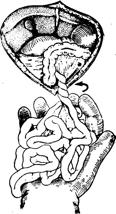 肠简笔画手绘