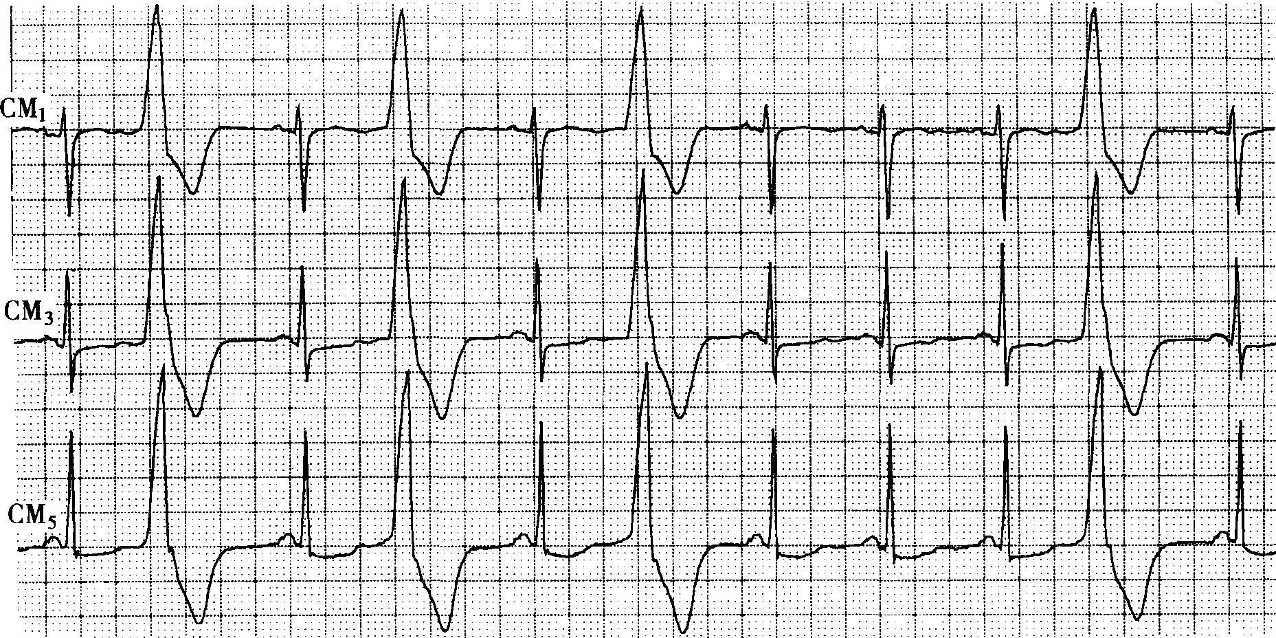 病例4-100 女性,76岁。冠心病。 : 【心电图特征】 窦性心律,心率88次/分钟。CM3、CM5导联ST段下降0.05~0.10mV,T波低平。室性早搏呈R型,两个室性早搏之间的窦性心搏数为1与3,提示室性早搏二联律伴间歇性传出阻滞。【心电图诊断】窦性心律; 慢 ......