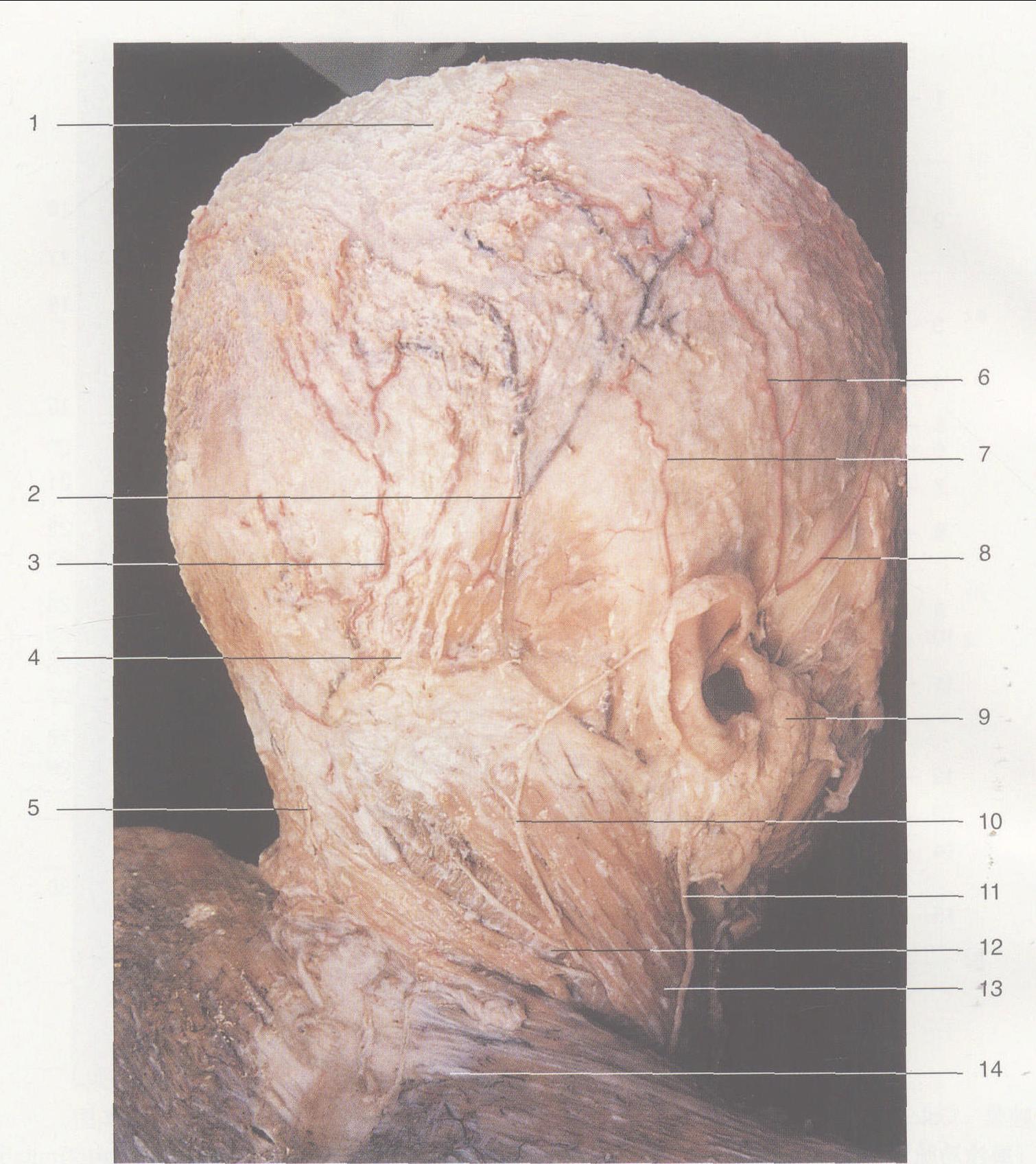 (图) 头颈部浅层结构 (侧一后观) : 1帽状腱膜 Galea aponeurotica2耳后静脉 Posterior auricular v.3枕动脉 Occipital a.4枕大神经 Greater occipital n.5第三枕神经 Third occipital n.6顶支 (颞浅动脉) Parietal branch (superficial tem-poral a.)7枕支 (耳后动脉) Occipital branch(posteri .