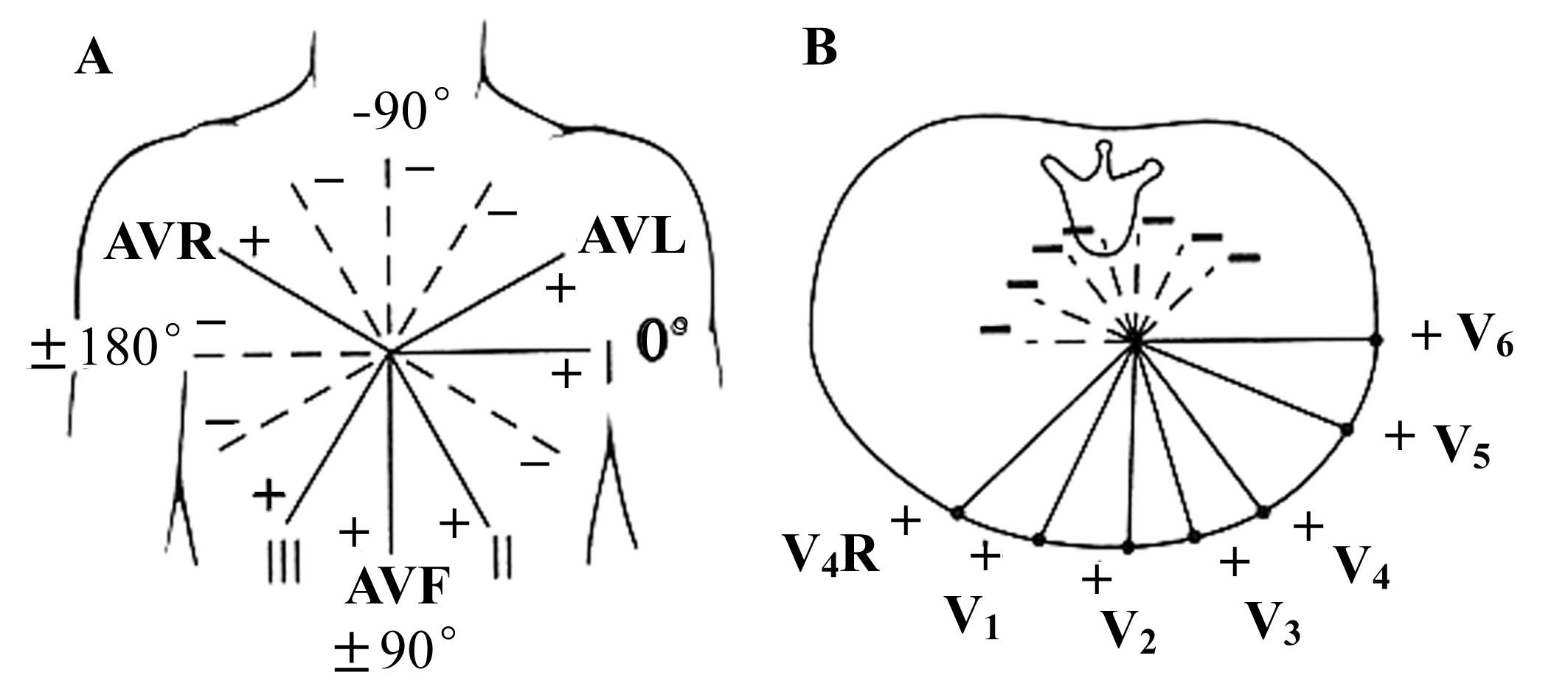 导联的镜面位置。 图1-12表示在X轴和Y轴上叠加的六轴参考系统,由伸展四肢的人体表示,手和足代表特定导联的正极。左右手分别是AVR和AVL的正极,左右脚分别是、导联的正极。双极肢体导联、和按正极序列的排列为顺时针方向。 【心电图的常规分析】 心电图的常规分析可根据以下顺序进行: 心律:窦性或非窦性,根据P轴分析; 心率:如果房室率不同,则注意各是多少; QRS电轴,T电轴和QRS-T角; 间期和持续时间:PR、QRS和QT; P波的振幅和持续时间; QRS波振幅和R/S比率,并注意异