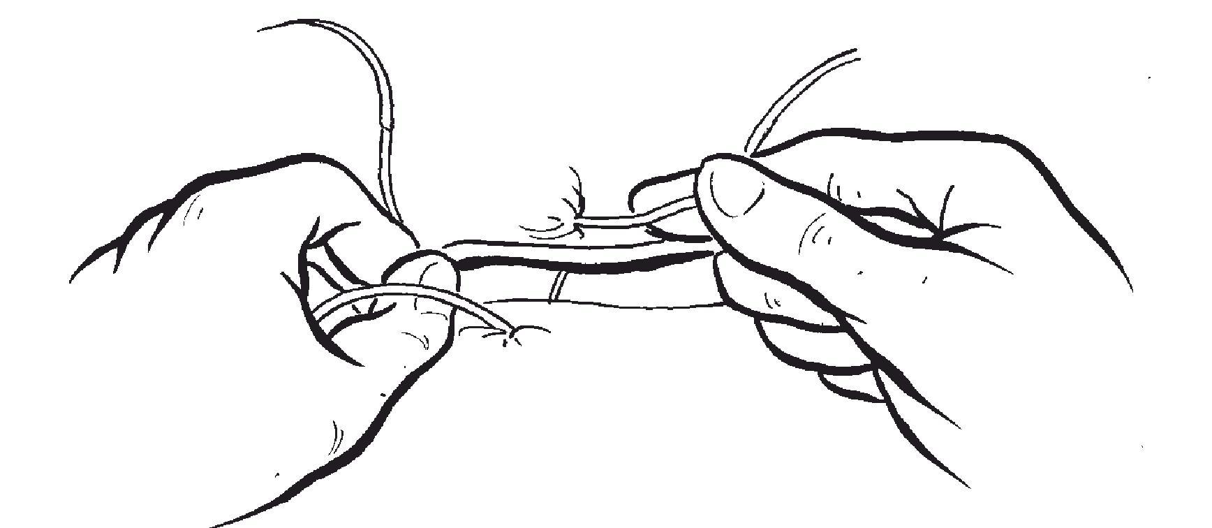 加快打结速度的方法-外科手术学-医学